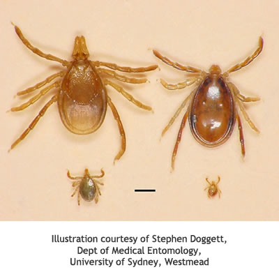 tick allergy australasian society of clinical immunology and