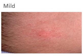 Subcutaneous immunoglobulin (SCIg) therapy - general